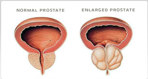 Prostata wielkość